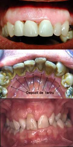cabinet stomatologic slobozia parodontologie